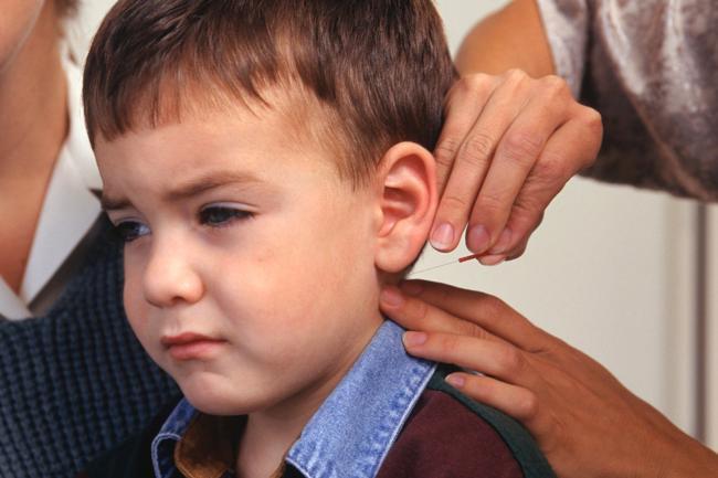 лечение логоневроза иглоукалыванием