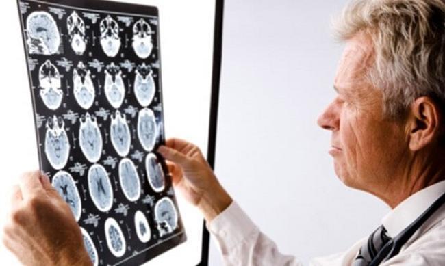 диагностика истерического невроза