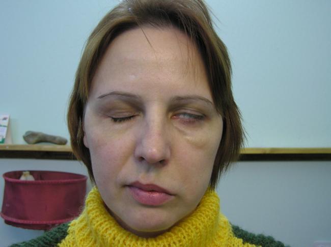 симптомы невроза лицевого нерва