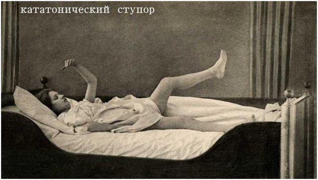 кататонический ступор девушка