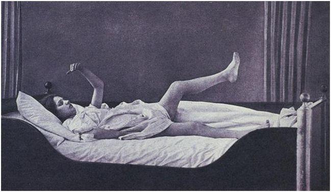 изображение ступора