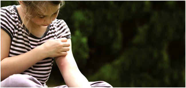укус насекомого у ребенка