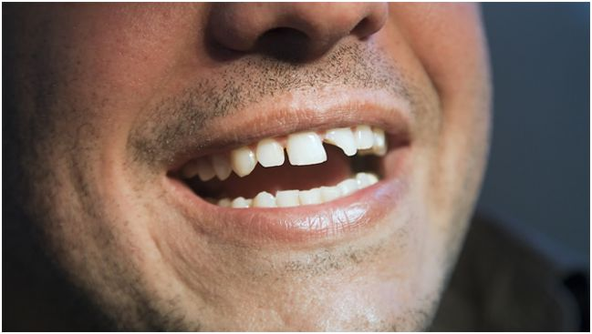 мужчина со сломанным зубом