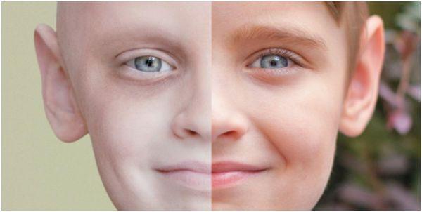 ребенок после рака